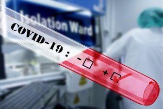Epidemie koronavirus 2020/2021
